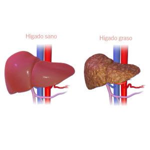 Para el Hígado